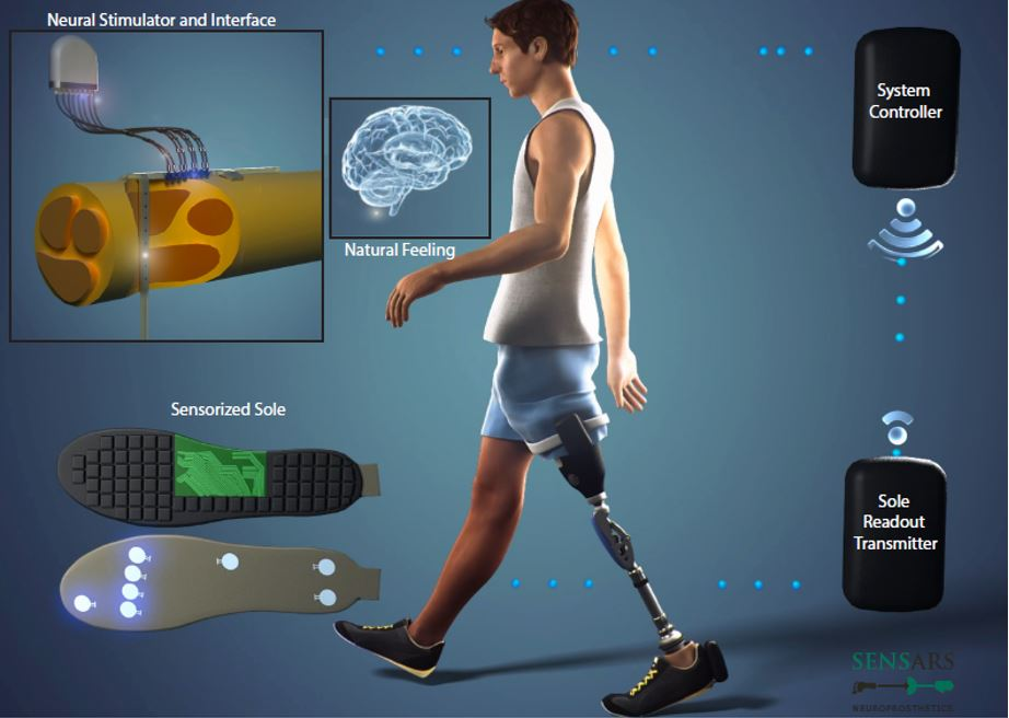 Visual representation of the prosthesis add-on that is being developed by the project